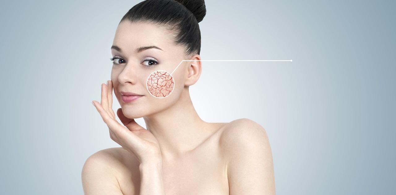 Как ухаживать за кожей при куперозе